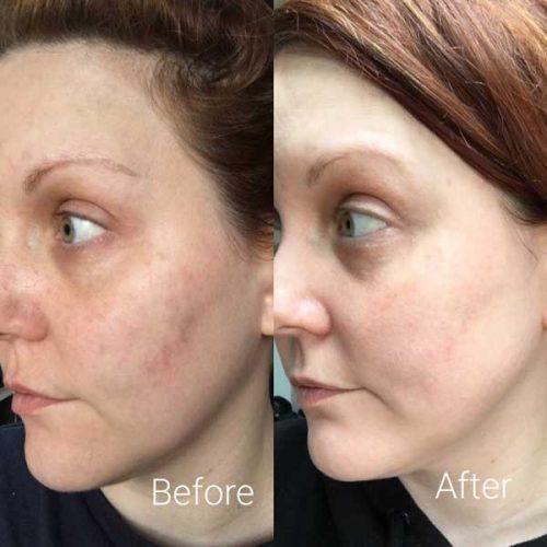 حذف لکه از پوست با سرم ویتامین سی