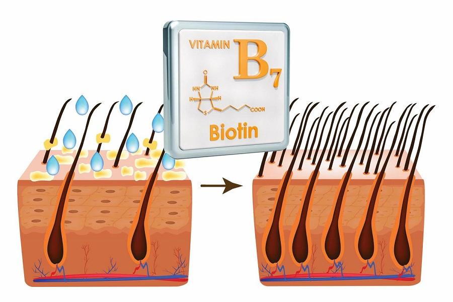 بیوتین چیست؟ نقش بیوتین در رشد و کاهش ریزش مو