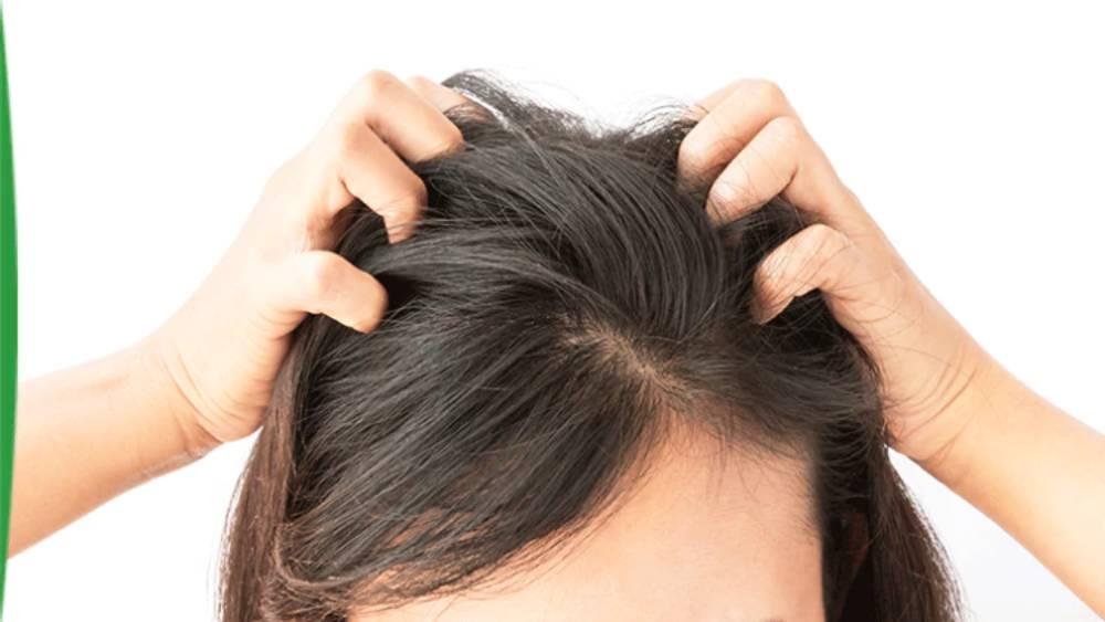 شامپوی موی حساس