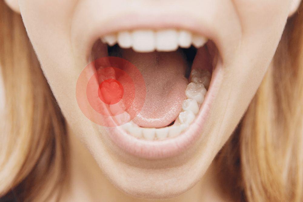 استفاده از خمیر دندان ضد حساسیت