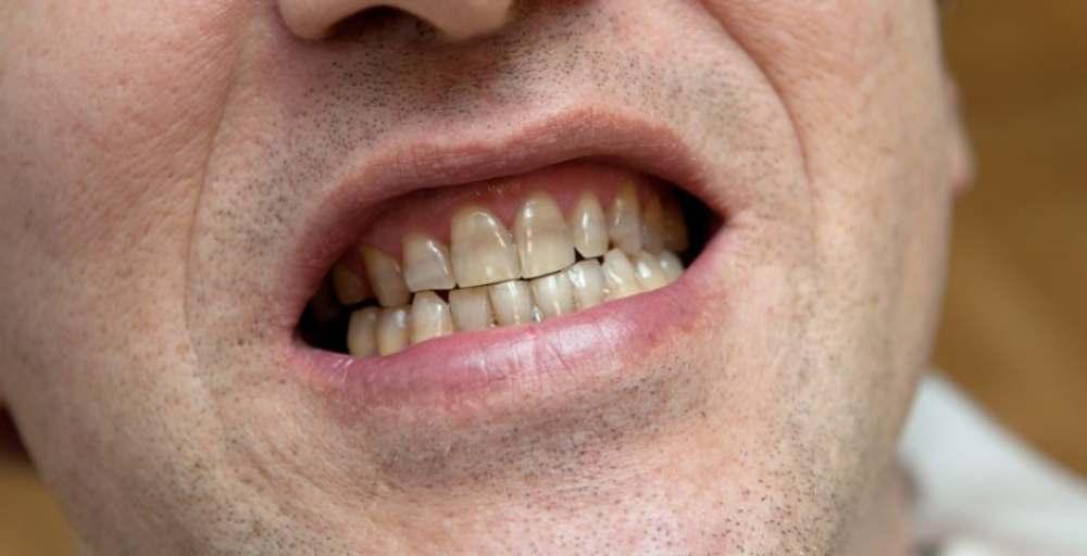 خمیر دندان برای افراد سیگاری