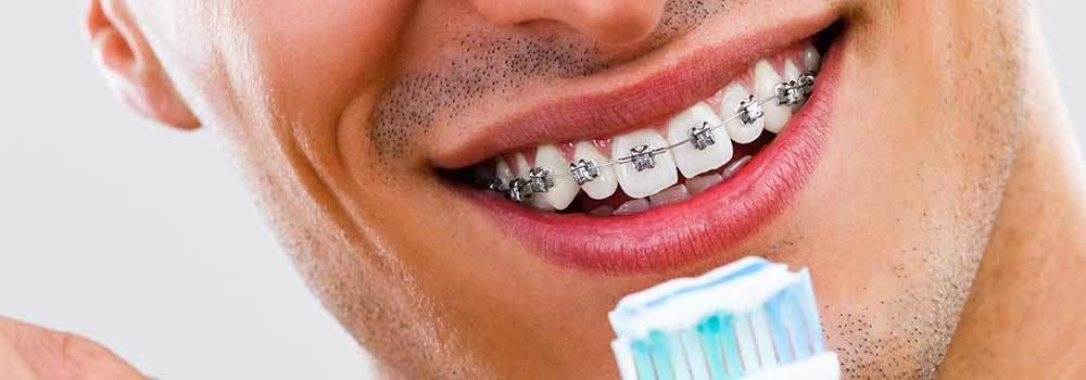 خمیر دندان مخصوص ارتودنسی