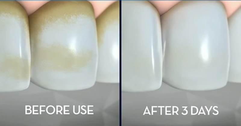 خمیر دندان مخصوص سیگاری ها